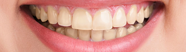 before-whitening
